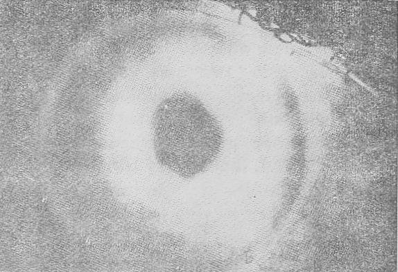 Detachment of Descemet's membrane and con.eal edema following insertion of a P-C lens.