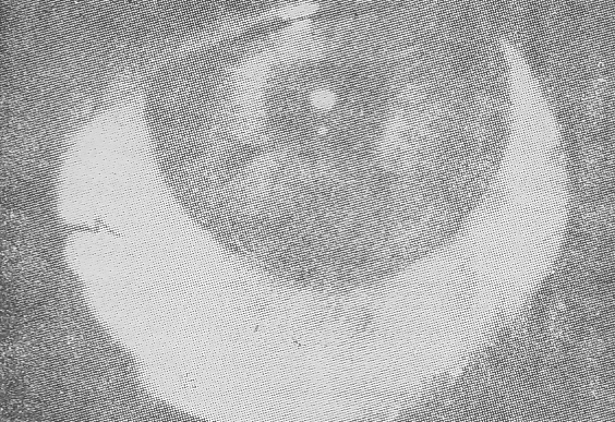 Dislocation of an iris supported lens into the anterior chamber