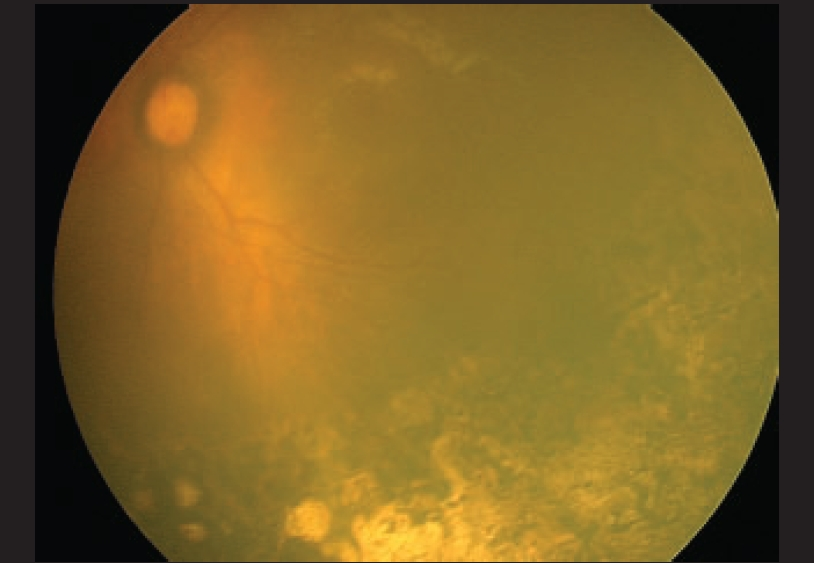 Retcam photo of same eye showing clear media with laser