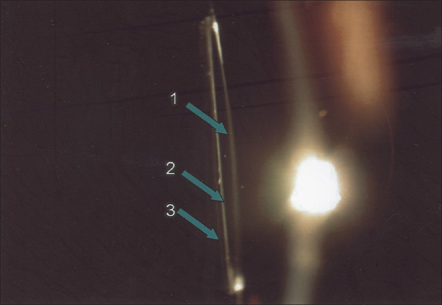 Figure 5: (Case 2) Slit-lamp photo taken with slit section showing anterior (1), posterior (2) surface of the IOL optic and posterior lens capsule (3) (arrows). A clear space between the posterior surface of the optic and posterior capsule, devoid of lens matter is seen