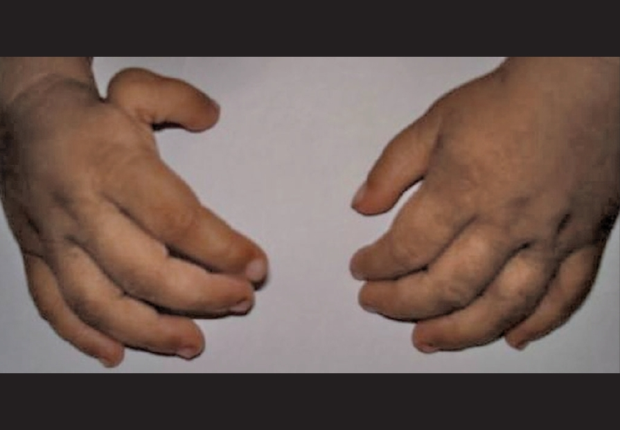 Figure 4: The clinical photograph of the hands showing right hypoplastic (floating) right thumb