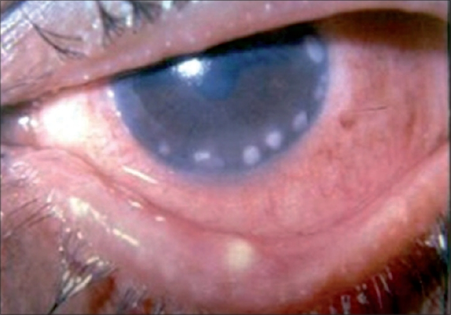 Figure 3: Marginal keratitis