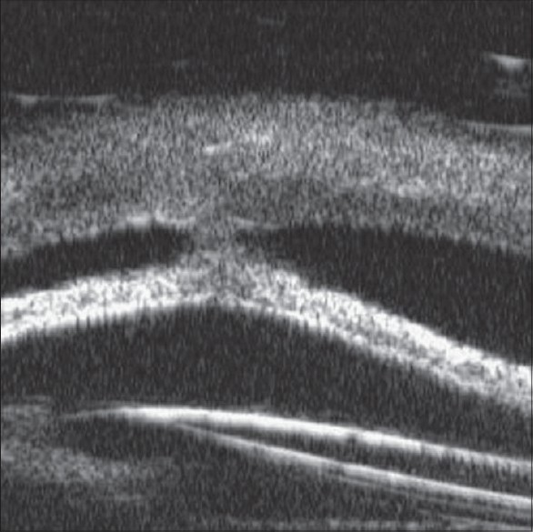 Figure 5: Central iris corneal synechia with ACIOL tilt (copyright owner Lippincott, Williams and Wilkins, 2008)