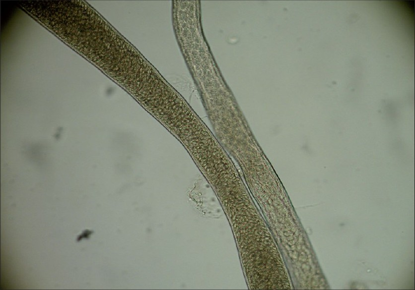 Figure 3: Microscopic appearance of worm