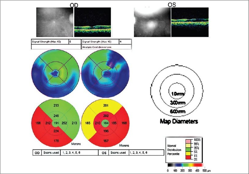 Figure 4: Retinal thickness and volume measurements at the parafoveal region of a patient with chloroquine maculopathy