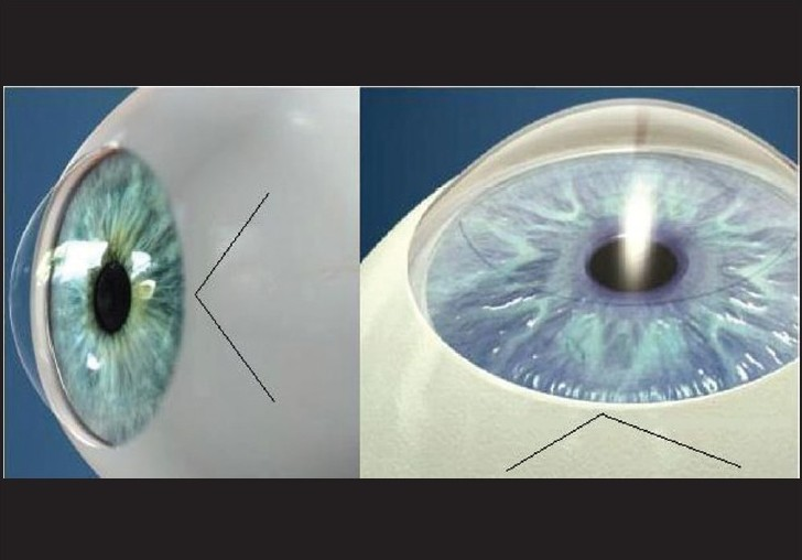 Figure 9 :Chevron 'v' incision. This incision is quite difficult to make. The tunnel size in this incision is relatively smaller. Hence, maneuvering a large nucleus through this would be difficult. However, this incision