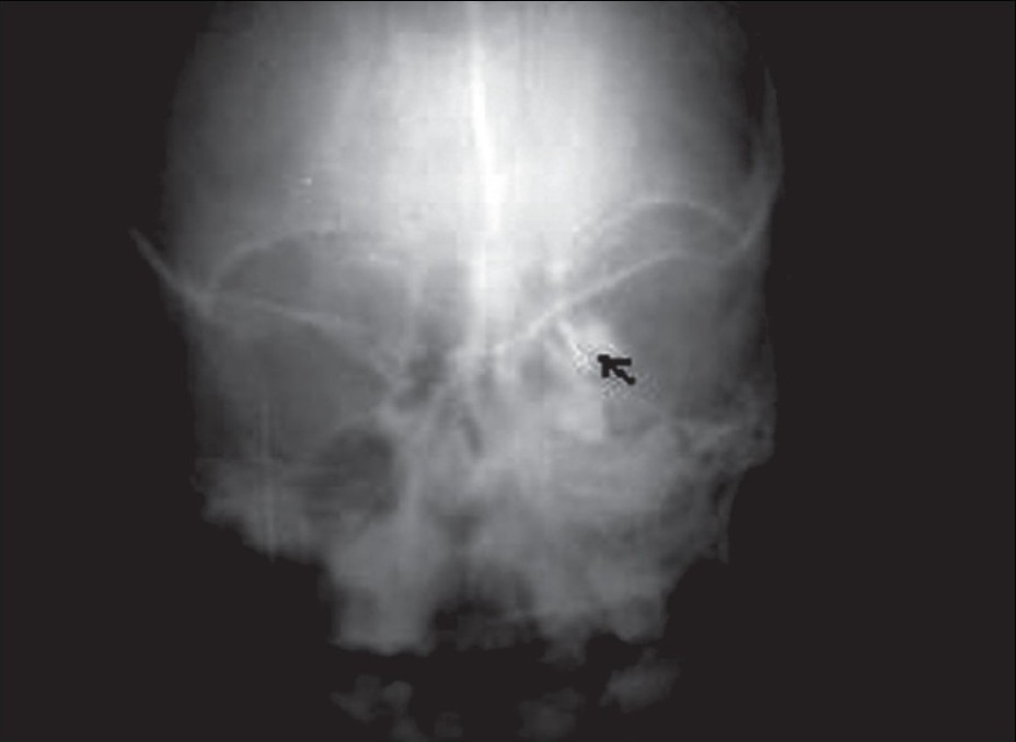 Figure 3: Preoperative left dacryocystogram showing inability of the contrast medium to pass beyond the lacrimal sac (black arrow)