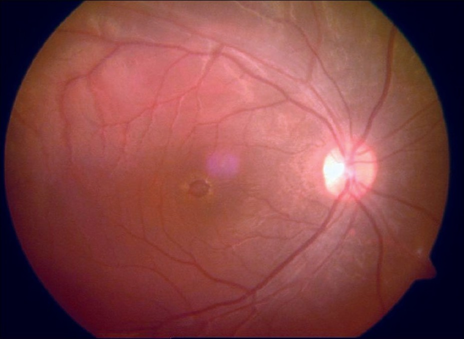 Figure 3: Color fundus photograph of right eye showing macular hole