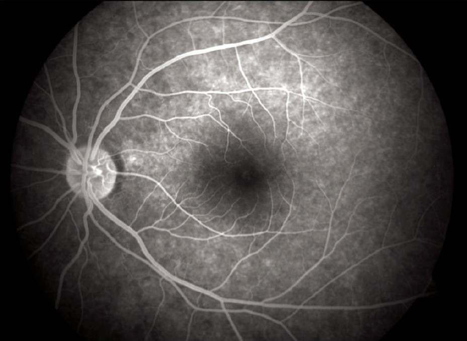 Figure 7: FFA picture of left eye showing foveal window defect