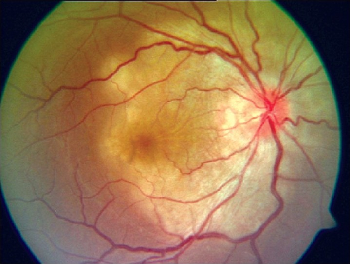 Figure 9 :Fundus picture showing active geographic helicoid peripapillary choroidopathy
