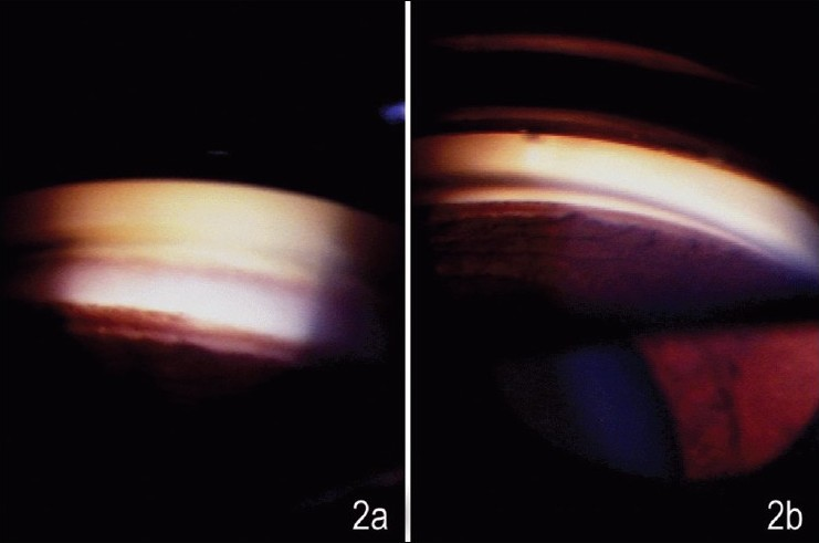 Figure 2 :Gonioscopic appearance of the angle shown in Figure 1 on indentaion, showing the a) disappearance of the synechia with Sussman lens and b) persistence of the synechia despite manipulative