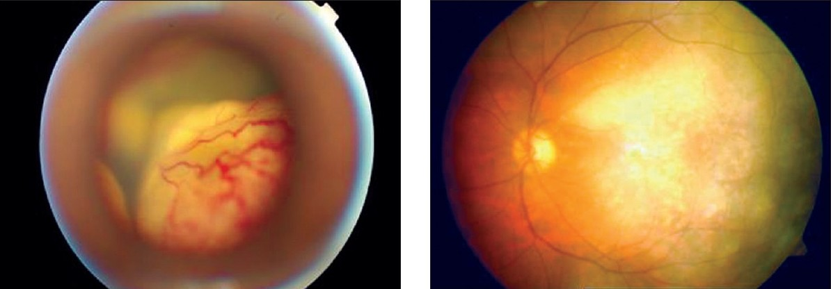 Figure 3 :(a) Pre-injection fundus retcam image showing total RD with extensive telangectasia