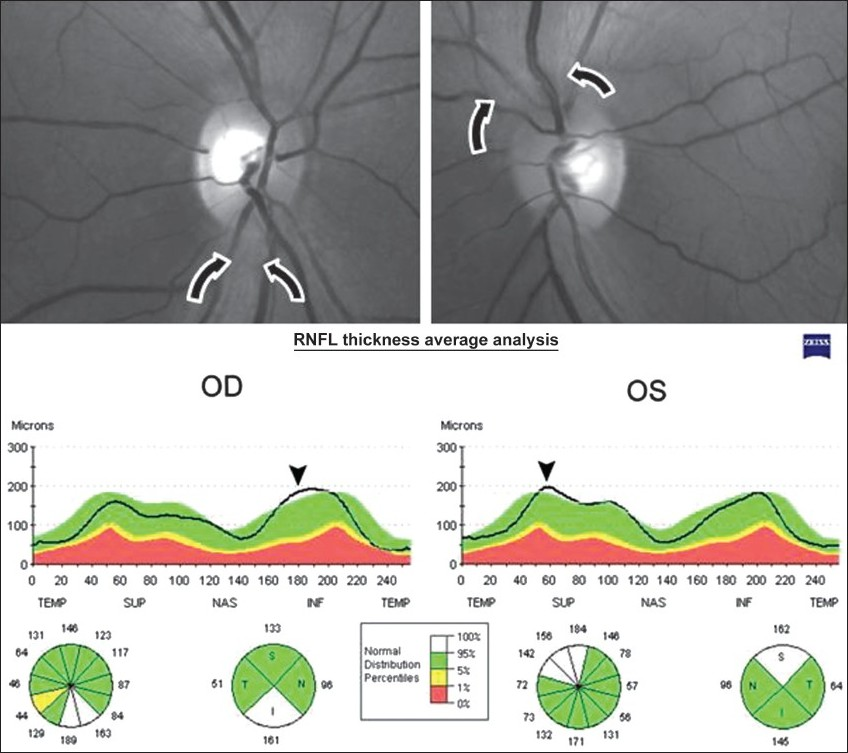 Figure 3 - Case 3: Above, Fundus photography. Note retinal nerve fi ber layer swelling (arrows) and temporal optic disc pallor and retinal nerve fi ber layer loss in the papillomacular bundle of both eyes. Below, Stratus-OCT printout showing increased retinal nerve fi ber layer thickness in the inferior quadrant of the right eye and in the superior quadrant of left eye (arrowhead)