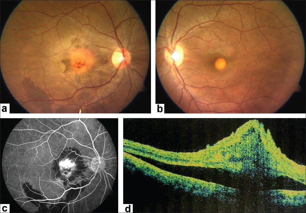 choroidal neovascular membrane associated with sildenafil Purpose to describe the oct findings in two cases of idiopathic serous macular detachments associated with sildenafil (viagra) use.