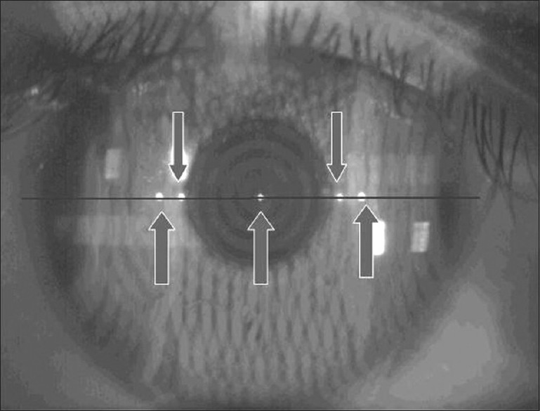 Figure 1 :The real image of cornea with Eyemetrics digital caliper measurement along the 5 point corneal reflections