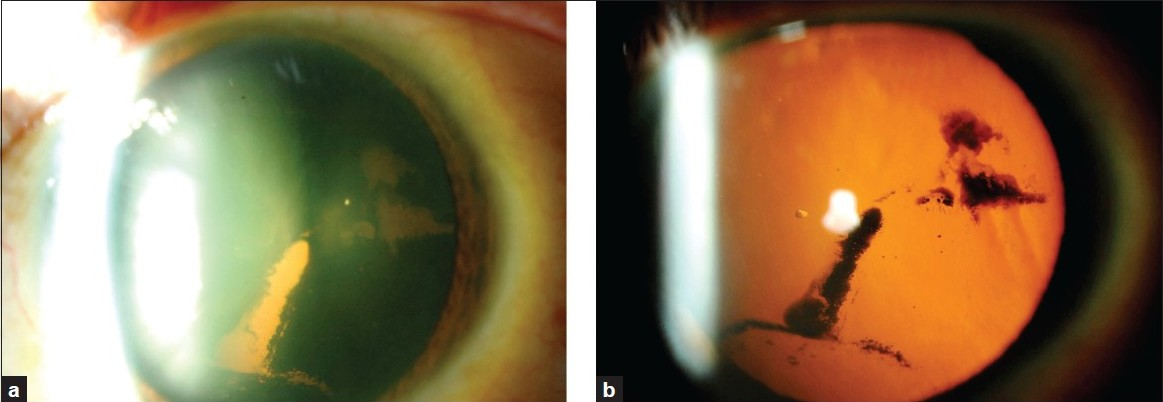 Figure 1: (a) a dense central patchy pigmentation of the posterior lens capsule of the left eye. (b) retroillumination of the same eye