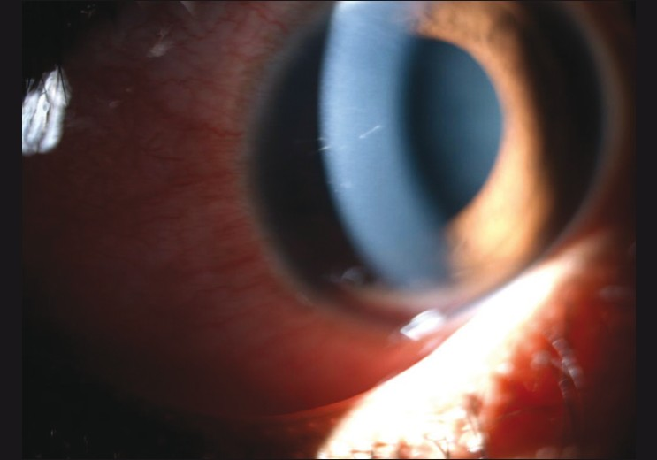 Figure 2: Retained intracorneal setae, tangential to the corneal curvature, with minimal surrounding congestion