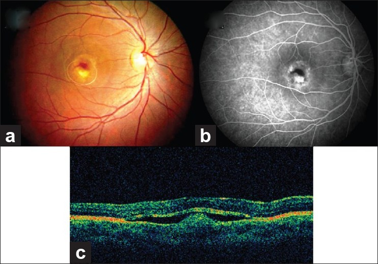 choroidal neovascular membrane associated with sildenafil The development of choroidal neovascular membrane (cnv) is a rare complication with associated subretinal fluid or haemorrhage resulting in diagnostic confusion for malignant transformation and in vision loss depending on the location of the naevus, reported to occur in 058% of choroidal naevi1 various treatment modalities have been used in.