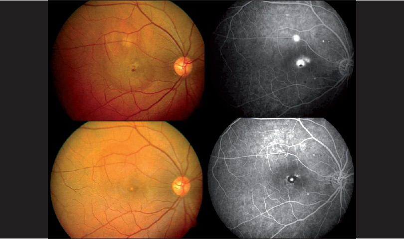 Figure 1: Fundus photographs and fundus fluorescein angiography. First row: Fundus photograph and angiogram showing active central serous chorioretinopathy with ink-blot leakage superior to the fovea and subfoveal classic choroidal neovascularisation. Second row: Follow-up photograph and angiogram one month after intravitreal bevacizumab (1.25 mg/0.05 ml) show absence of ink-blot leakage and resolution of the neovascular membrane