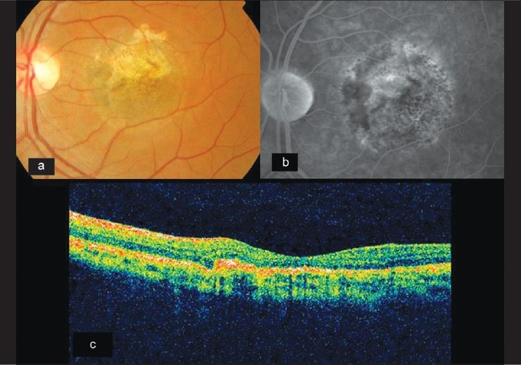 Figure 3: (a) Fundus photograph of the same eye showing absorbed hemorrhage and resolved CNVM posttreatment. (b) Late phase angiogram showing an absence of leakage and staining of scar tissue