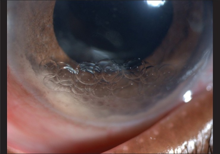 Figure 1: Slit-lamp photo showing PFCL bubbles in inferior part of anterior chamber
