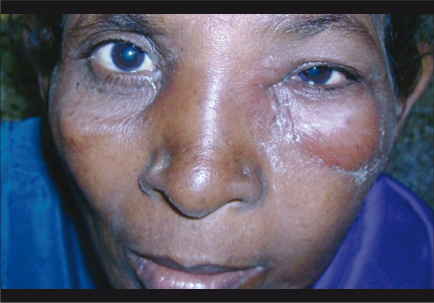 What necessary Treatment of facial cellulitis consider, that
