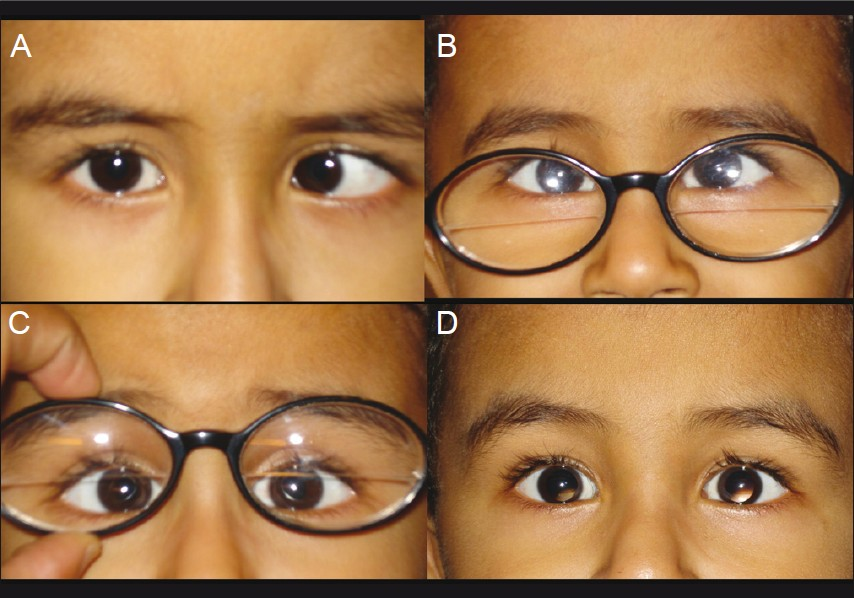 Exotropia Glasses How Long