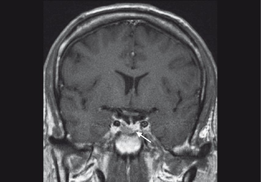 Figure 4: MRI scan with gadolinium illustrates a pituitary macroadenoma (arrow) within a deformed sella turcica