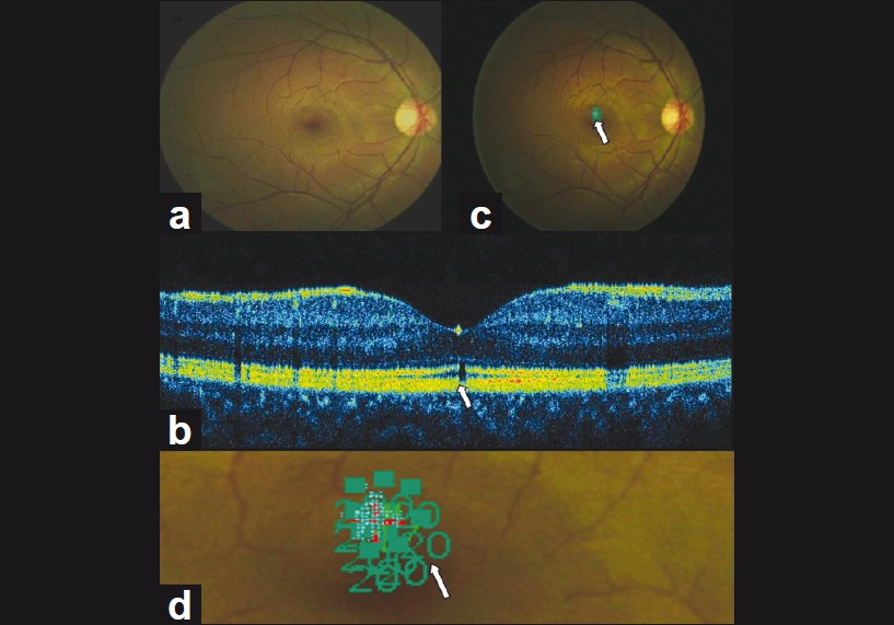 Figure 1: Color fundus image of the right eye (a); the respective spectral domain optical coherence tomography scan (b); microperimetry in the region of macular microhole (c); the magnified microperimeter values at macular microhole area (d); demonstrated a well-demarcated defect (arrow) of the macular microhole variant structural changes of retinal layers as well as retinal sensitivity in respective area of defect