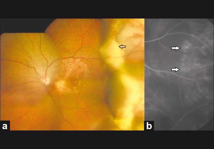 Figure 2: Six weeks after second bevacizumab injection. Color fundus montage (a) shows consolidation of hard exudates and reduction in the sub-RPE mounds of hemorrhages in the temporal periphery (arrow). Indocyanine green angiography (b) reveals persistent polyps (arrows)