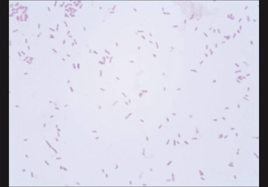 Figure 2: Gram's stain showed the presence of gram-negative bacilli