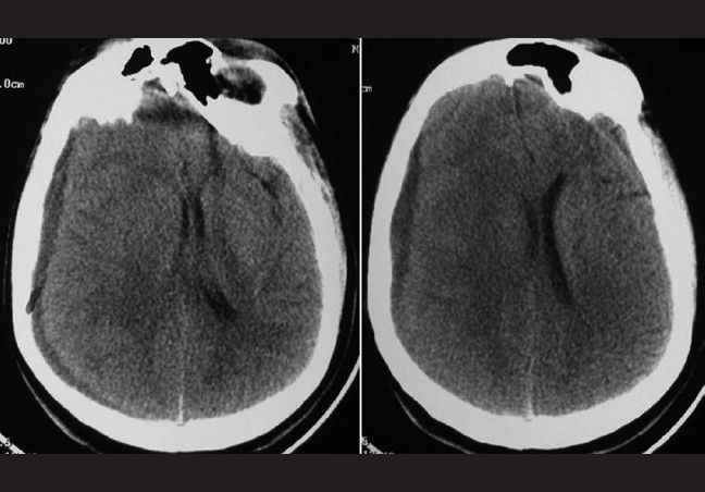 Figure 2: (Case 1) CT scan showing right frontoparietal chronic subdural hematoma