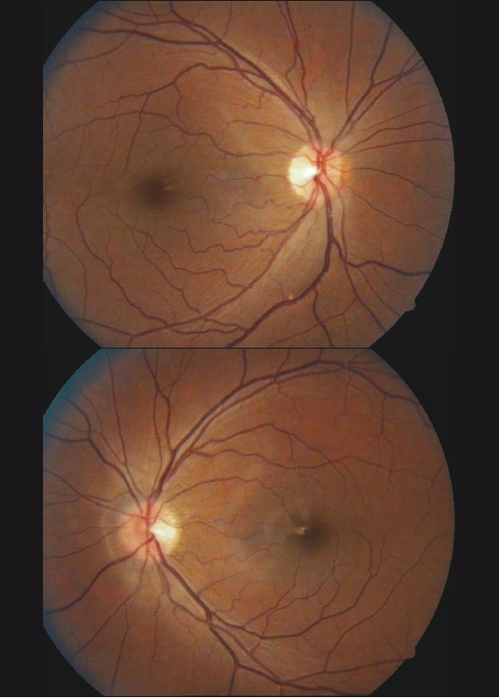 Figure 1a: Fundus photo of right eye showing normal optic disc