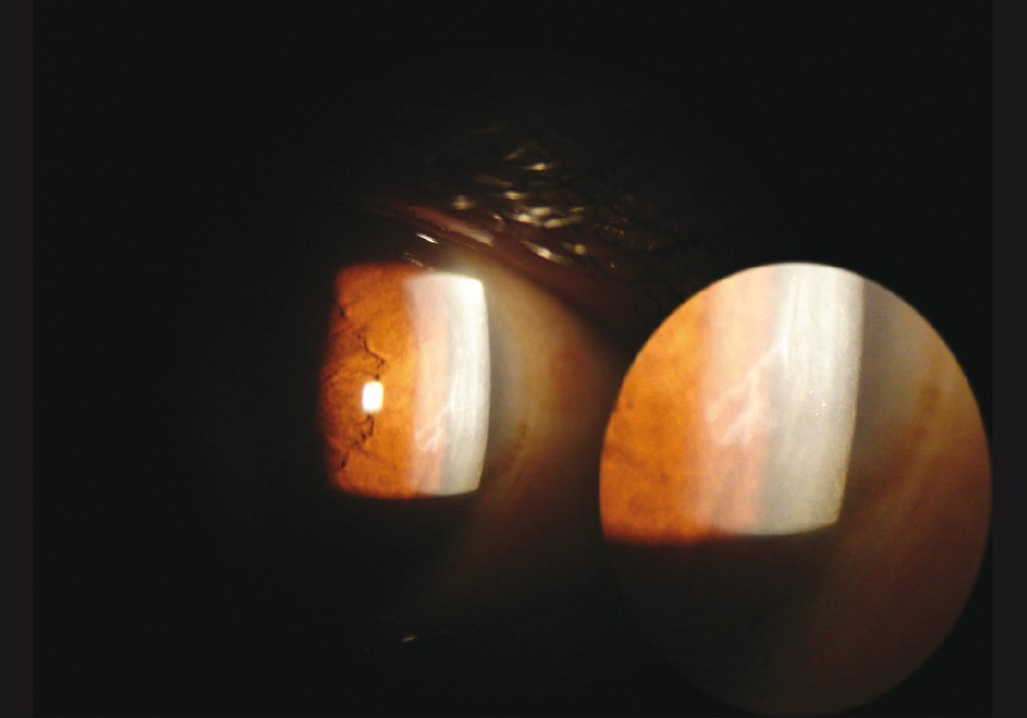 Figure 3: Corneal opacity at the deeper corneal layers with mild surrounding edema (left eye of the reported case at 4 weeks post-op)