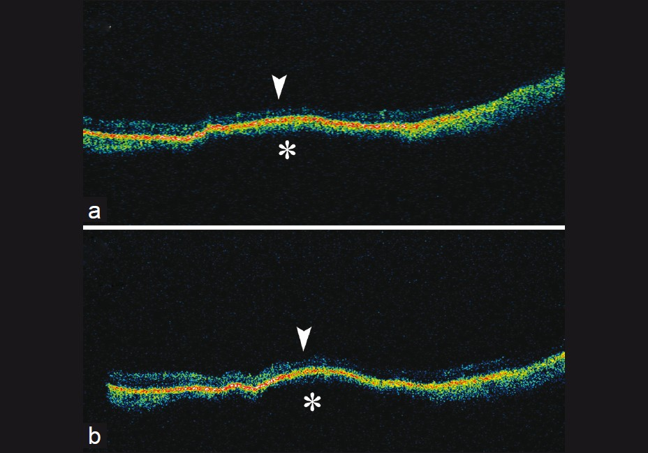 Figure 8: (a and b) Optical coherence tomography images of nevus demonstrating choroidal elevation with hyperreflectivity (asterisk) and normal architecture of overlying retina (arrowhead)