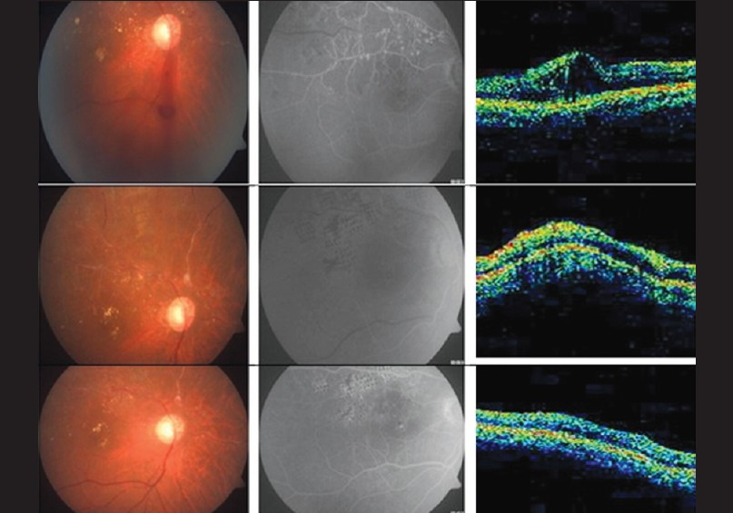 Figure 4: Changes in the fundus, FFA, and OCT in Group 2 at 1, 3, and 6 months follow- up