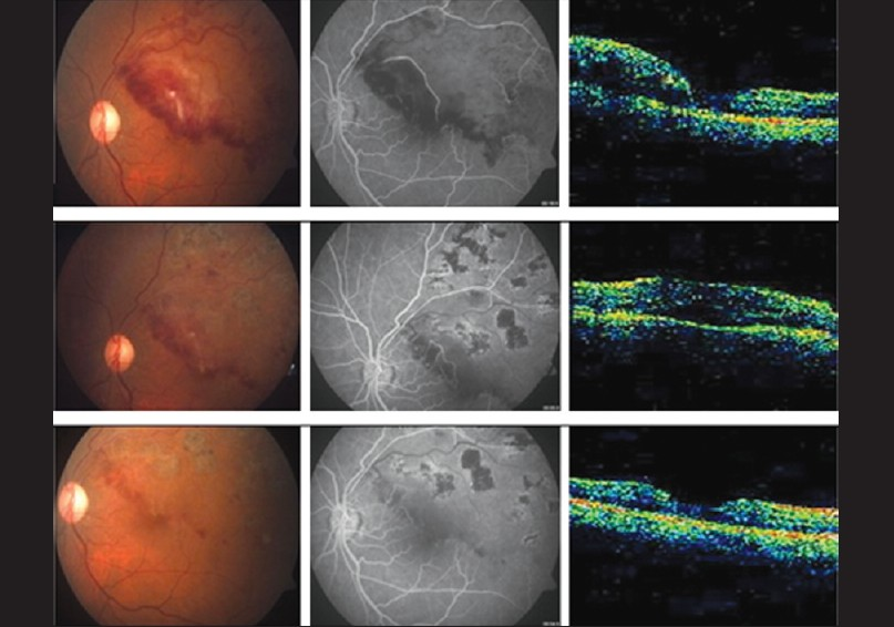 Figure 5: Changes in the fundus, FFA, and OCT in Group 3 at 1, 3, and 6 months follow- up
