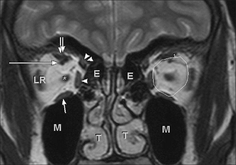 Magnetic Resonance Imaging For The Ophthalmologist A Primer Simha A