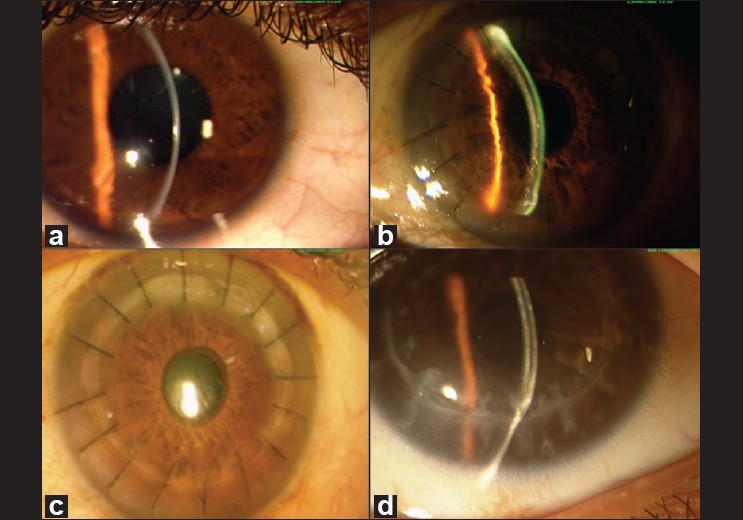 Anatomical And Functional Graft Survival, 10 Years After Epikeratoplasty In  Keratoconus Panda A, Gupta AK, Sharma N, Nindrakrishna S, Vajpayee R    Indian J ...
