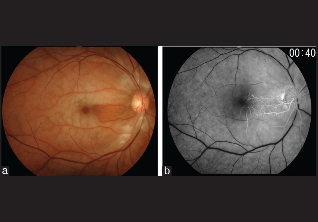 Figure 1: (a) Color fundus photograph of the right eye, showing a cherry-red spot, retinal pallor, and attenuated retinal arteries without emboli. (b) Fluorescein angiograms of the right eye at 40 s after injection, showing delayed arterial filling