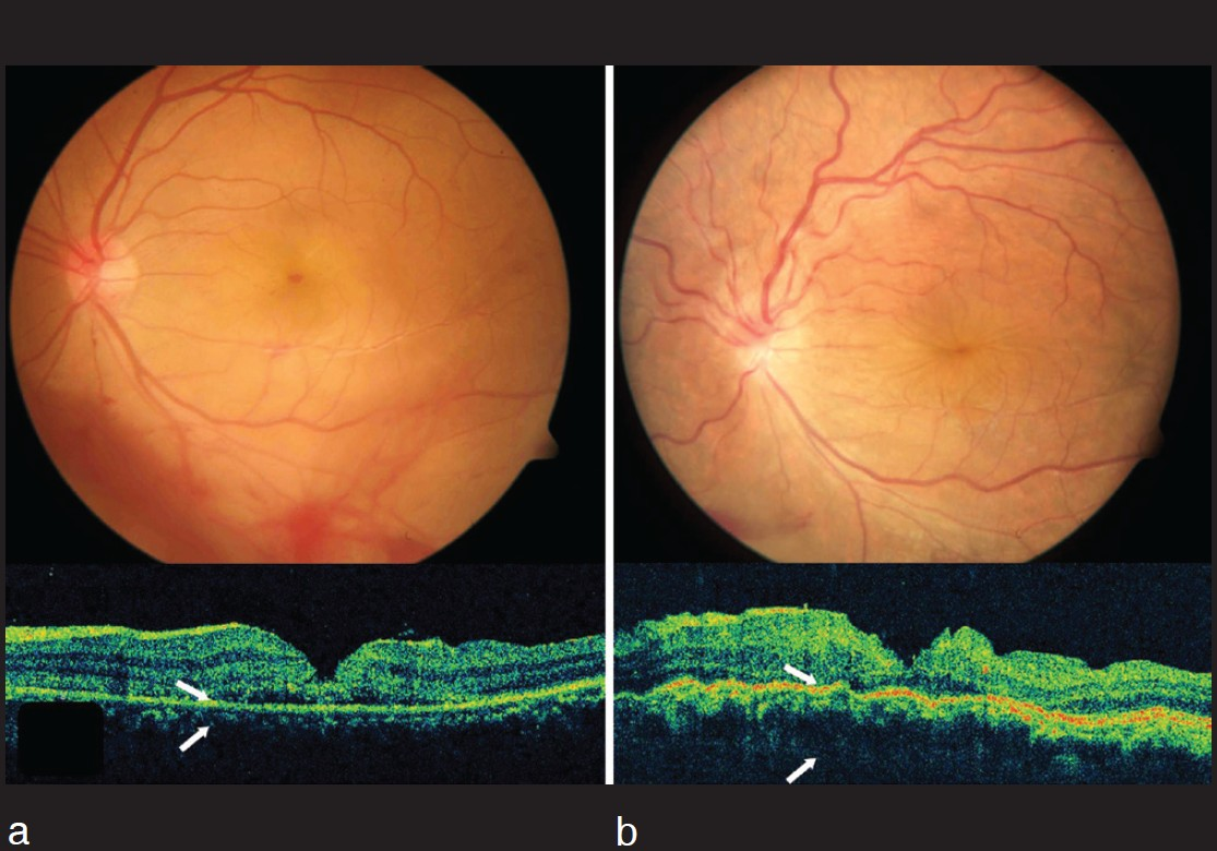 Figure 2 A At Initial Presentation Fundus Photography And SD OCT Of The Left Eye Showing Vitreous Hemorrhage Retinal Lamellar Macular