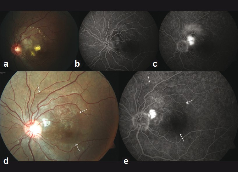 Figure 1: Before treatment: (a) juxtapapillary, elevated, white chorioretinal lesion with exudation, (b) FFA (early) reveals faint juxtapapillary hyperfluorescence of CNV and pin-point hyperfluorescent points superior to this lesion, (c) FFA (late) shows juxtapapillary CNV and diffuse leakage. After treatment: (d) complete resolution of exudation exposing the underlying choroidal nevus (arrows), CNV appears inactive and smaller in size, (e) FFA reveals burnt-out fibrotic CNV with late staining and ill-defined juxtapapillary hypofluorescence due to underlying choroidal nevus (arrows)