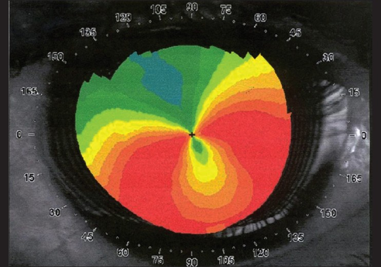 Forme Fruste Keratoconus Topography Based topography may help