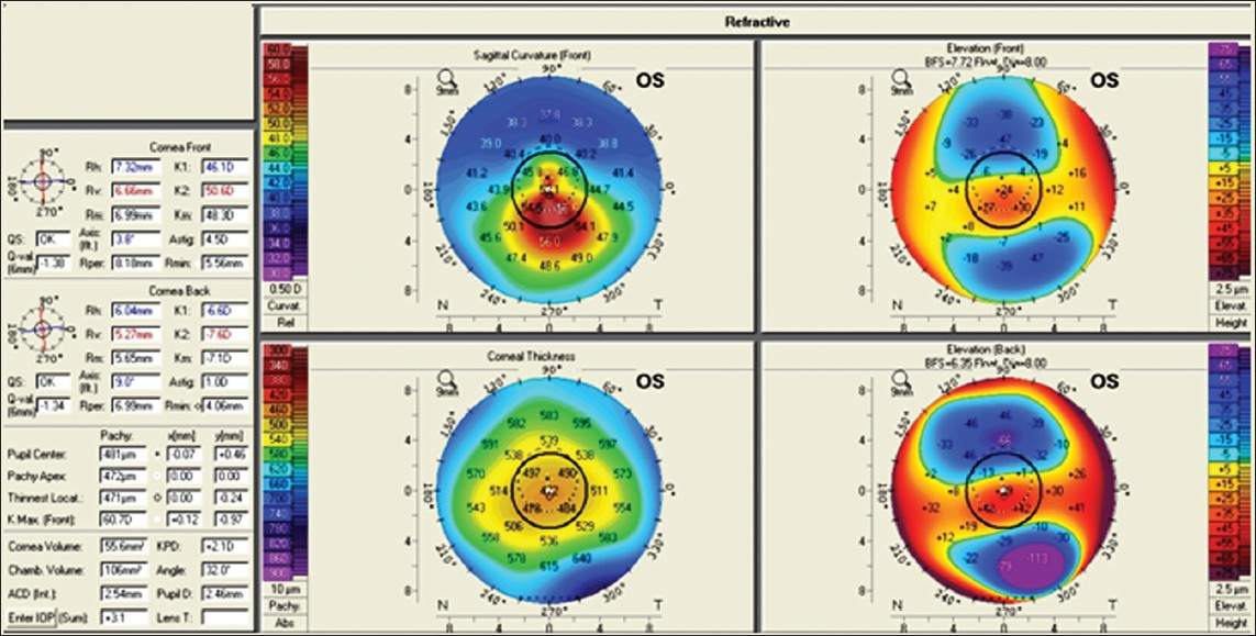 Topography-guided custom ablation treatment for treatment of ...