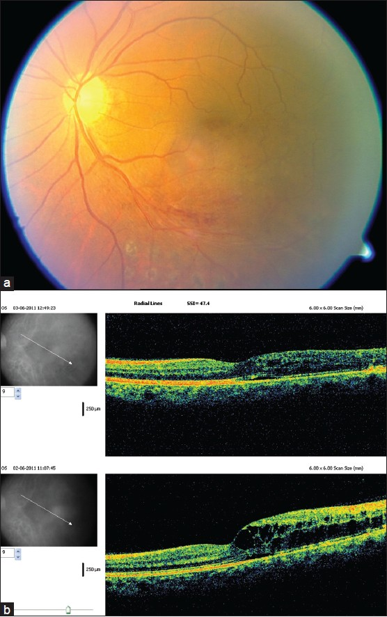 Figure 3: (a) Color fundus photo of the left eye of patient 3 showing inferotemporal branch retinal vein occlusions with retinal hemorrhages along inferotemporal arcade and diffuse macular edema. Old sectoral PRP marks are seen along and below the inferotemporal arcade (b) 3D optical coherence tomography pictures of the macula of left eye of patient 3 before and 1 day after intravitreal ranibizumab. The lower scan shows diffuse macular edema while the upper scan shows a significant reduction of macular edema 1 day after treatment
