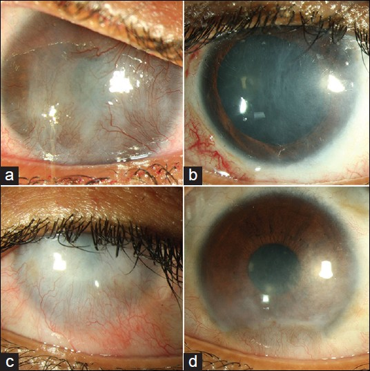 Transforming Ocular Surface Stem Cell Research Into
