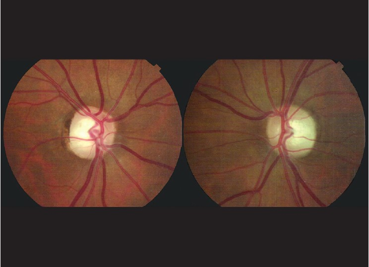 new ophthalmic steroid