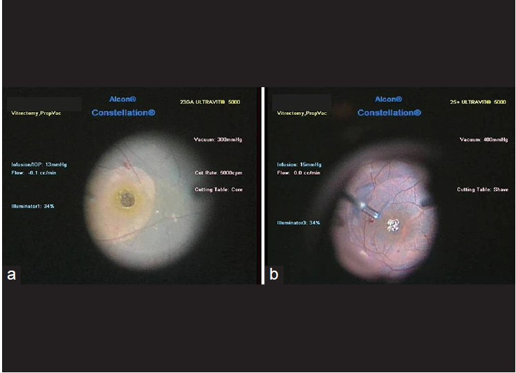 Evaluation of predictors for anatomical success in macular hole
