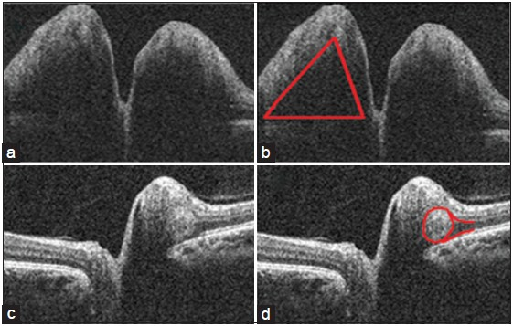 Figure 1: The triangular subretinal hyporeflective space in papilledema (a, b) and the buried optic nerve head drusen in pseudopapilledema (c, d)