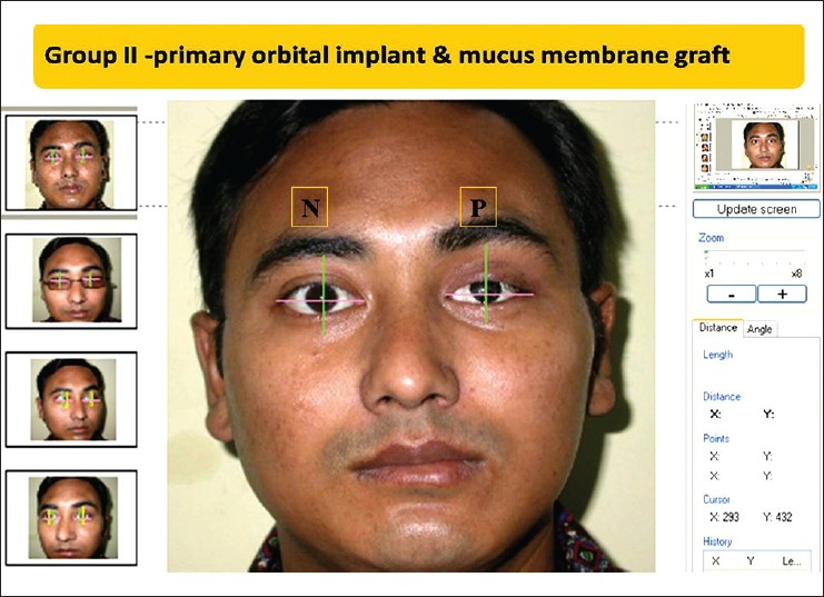 Figure 4: Case 4 of Group II showing the measurement of prosthesis motility in perfect screen ruler in straight gaze, where P is the prosthetic eye and N is the normal eye
